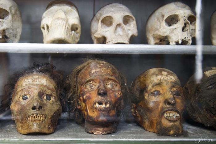 musée-anatomie-Montpellier-crâne
