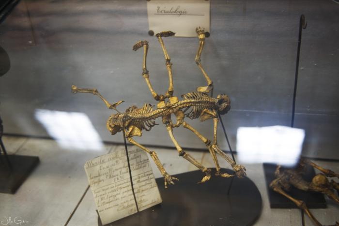 musée-anatomie-Montpellier-squelette-foetus