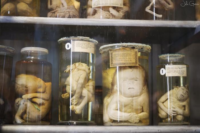 musée-anatomie-Montpellier-foetus